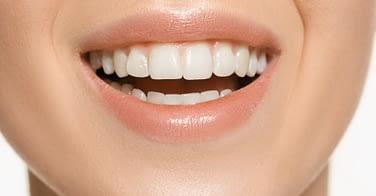 teeth whitening service Etobicoke - Li Family Dental