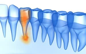 Cavities Complications - Li Family Dental