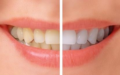 Edenbridge-Humber-Valley-Dentist-Cosmetic-Dentistry-Etobicoke-Dentist