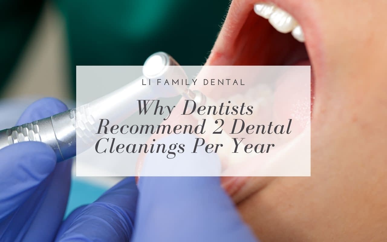 why-dentists-recommend-2-dental-cleanings-per-year-Li-Family-Dental
