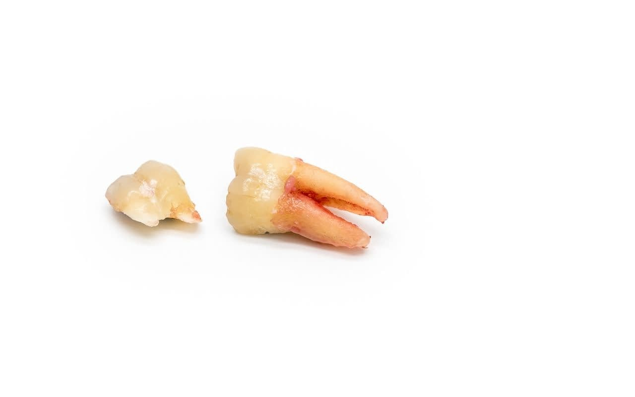 try-to-find-pieces-of-a-broken-tooth-Etobicoke-Dentist