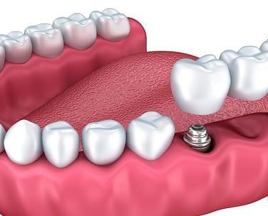 Dental Bridge Etobicoke - Li Family Dental