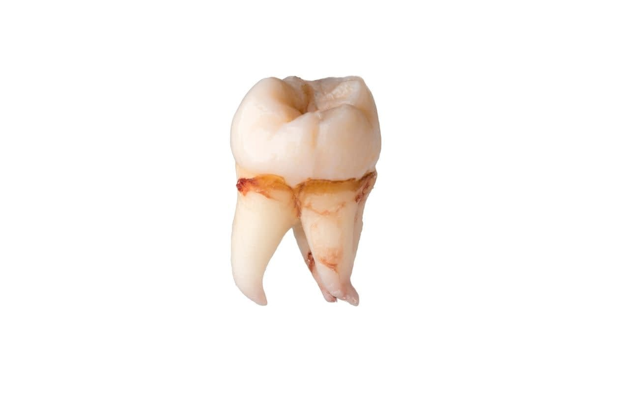 dont-pick-up-a-knocked-out-tooth-by-the-roots-Li-Family-Dental.