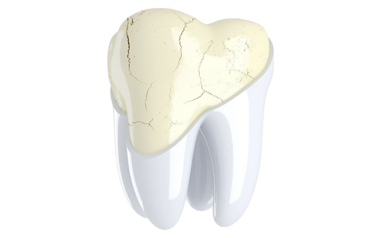 dont-ignore-a-cracked-but-painless-tooth-Etobicoke-Dentist