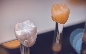 CEREC-same-day-crowns-Li-Family-Dental