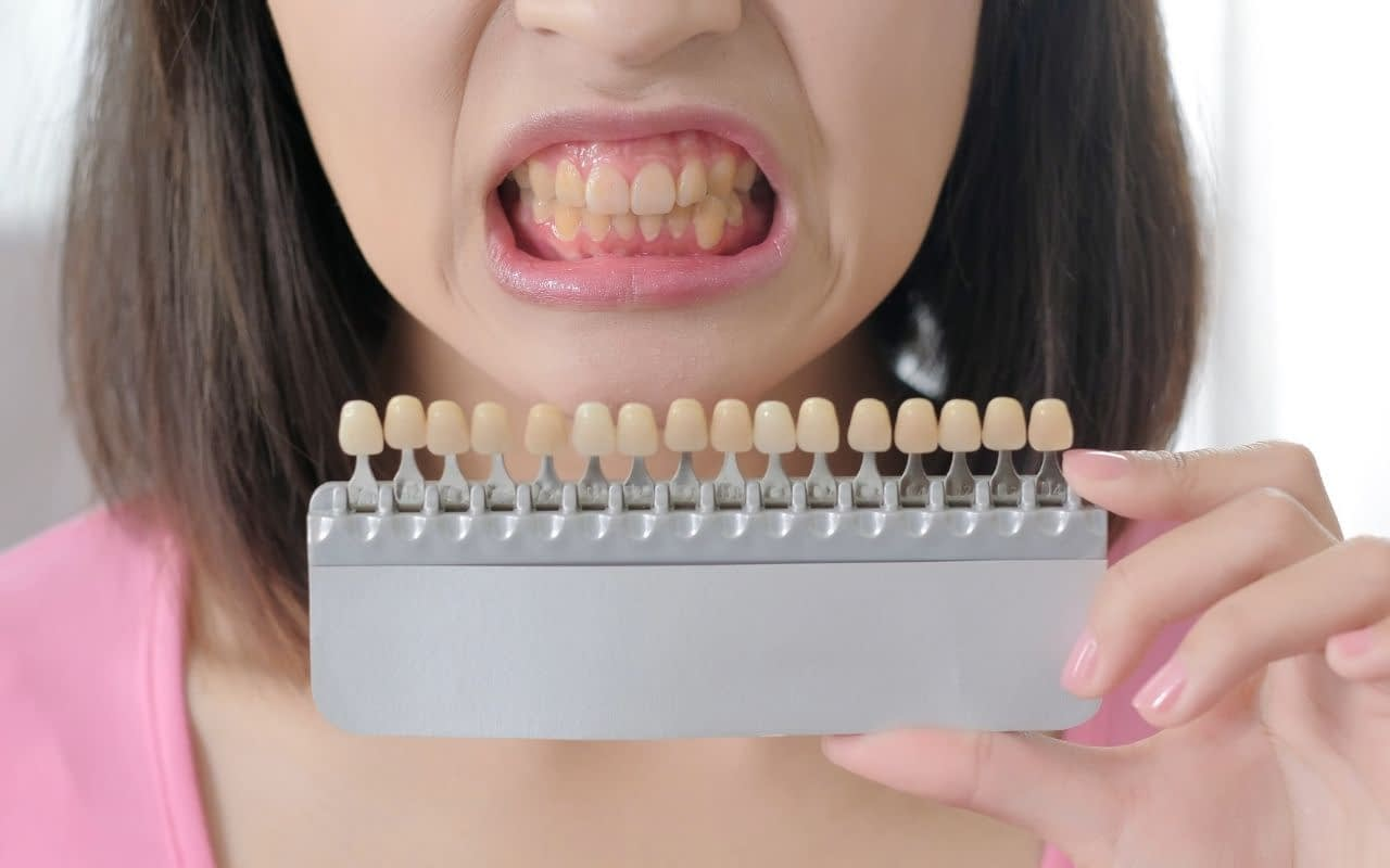 natural-discolouration-teeh-yellowing-Etobicoke-Dentist