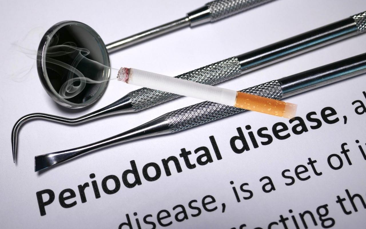 smoking-and-periodontitis