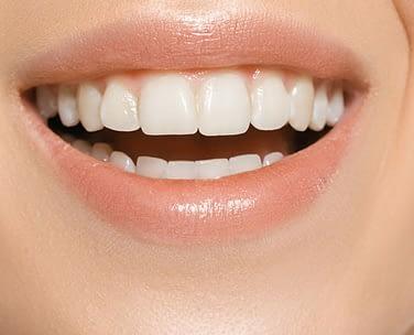 Teeth Whitening Etobicoke - Li Family Dental