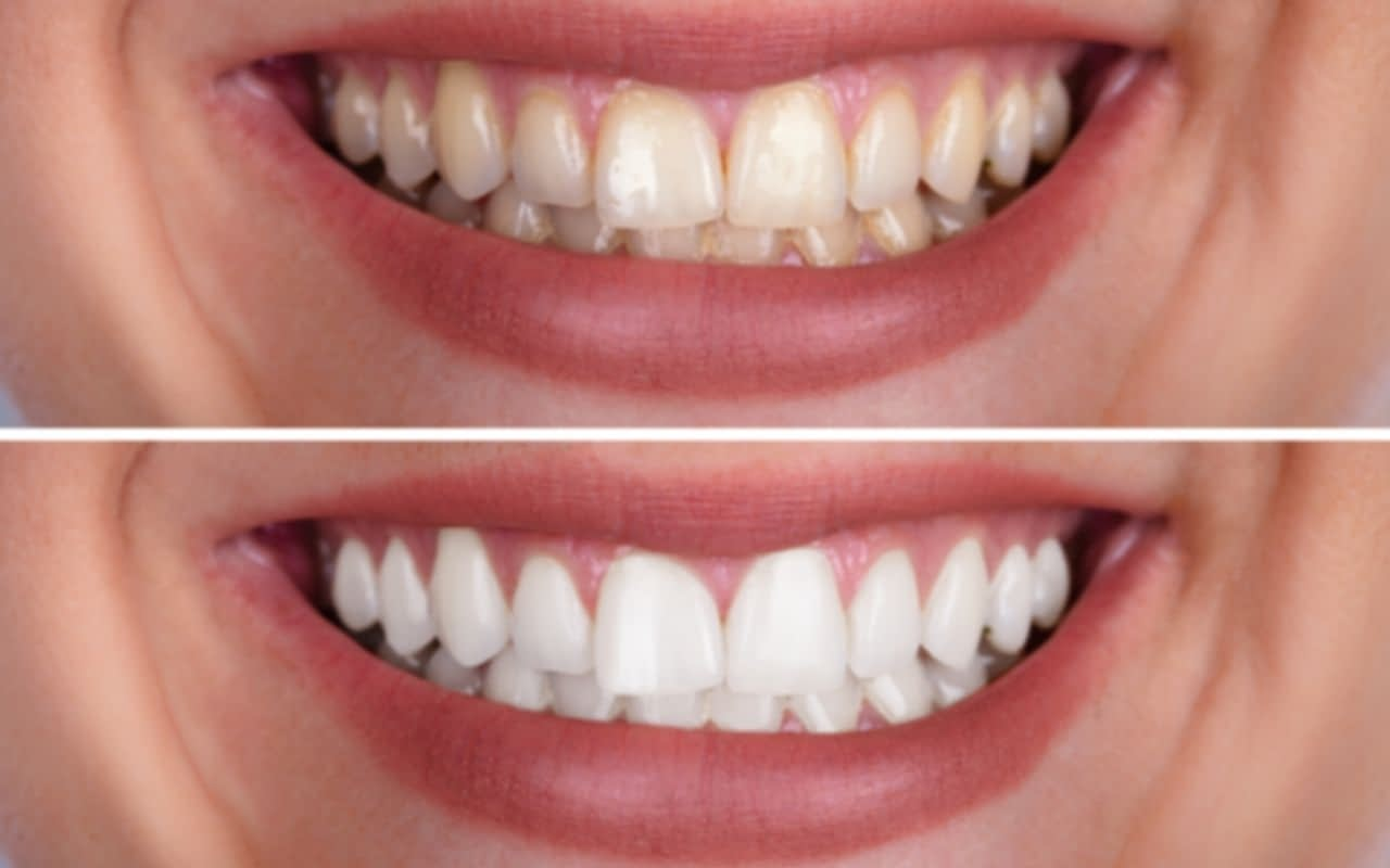 DIY-teeth-whitening-not-as-good-as-professional-treatments-Etobicoke-Dentist