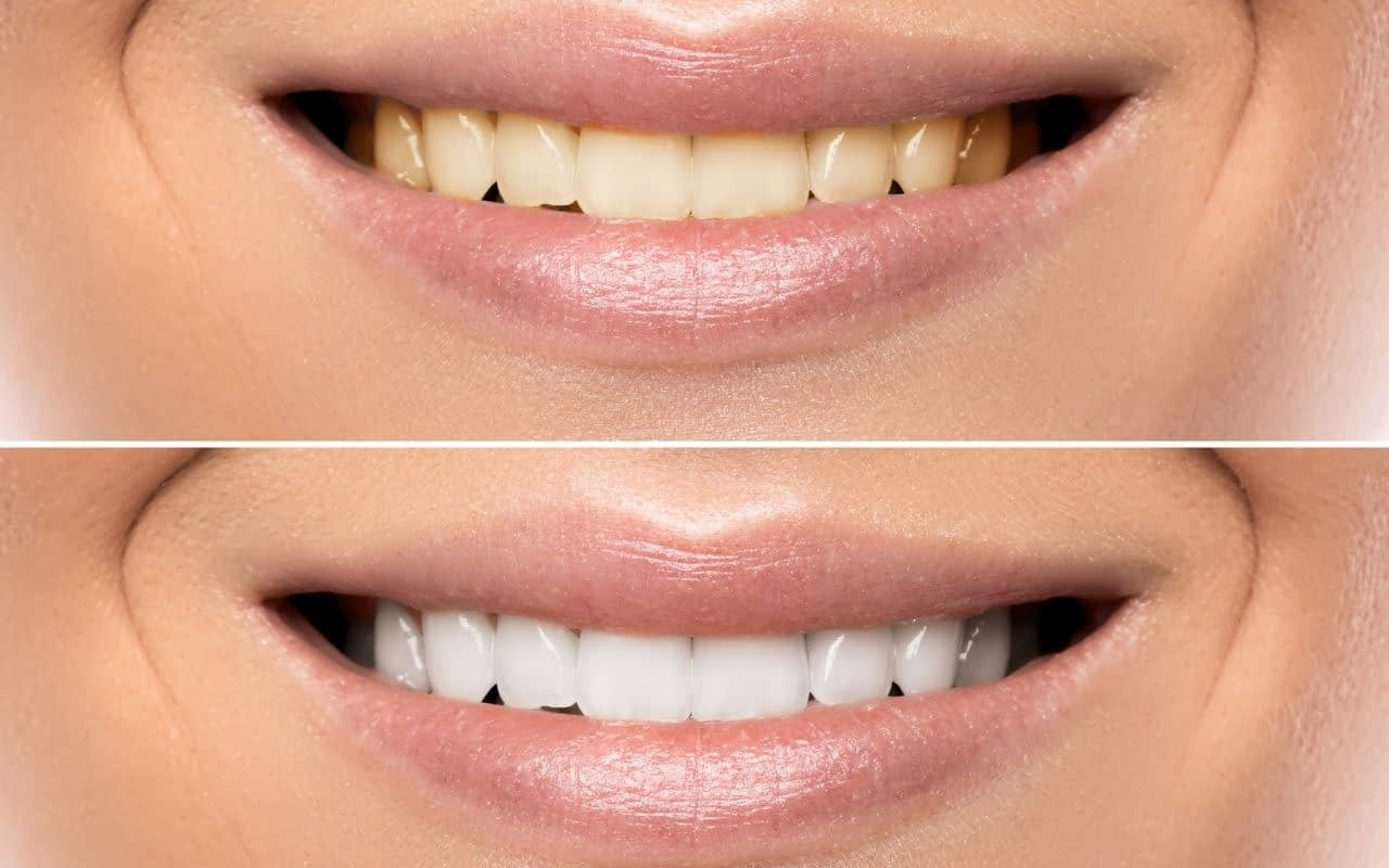 Myth-whitening-didnt-work-so-Im-stuck-with-stained-teeth-Etobicoke-Dentist