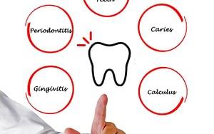 dental problems - how often should I brush my teeth