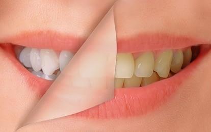 The-Kingsway-Dentist-cosmetic-dentistry-Li-Family-Dental