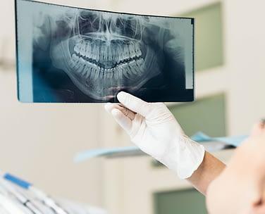 Wisdom Teeth Etobicoke - Li Family Dental