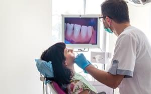 Intraoral-camera-Same-Day-CEREC-Dental-Crowns-Li-Family-Dental