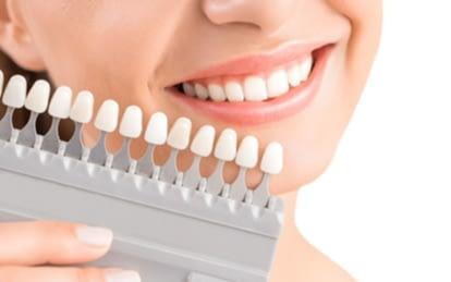 Sunnylea-Dentist-cosmetic-dentistry-Li-Family-Dental